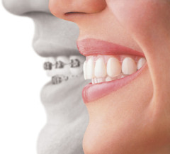 Best Invisalign Clear Dental Braces Fairfax VA Fair Oaks Mall Dentist Virginia