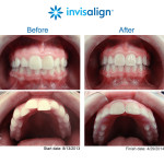 Invisalign, Dentist, Fairfax, Virginia, VA