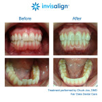 Invisalign Dentist, orthodontic, Fairfax, Virginia, Fair Oaks Mall, Fair Oaks Dental Care