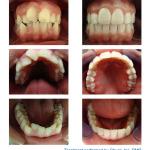Invisalign, dentist, Fairfax, VA, Virginia, Best, Dental, Family Care, Fair Oaks, Fair Lakes, Oakton, Vienna, straight teeth, braces, orthodontic, orthodontist, discount