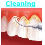 Fairfax VA Dental Care Teeth cleaning