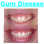 Fairfax Virginia Gum Disease Dental Treatment
