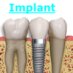 Implant Dentist Fairfax VA Dentist Fair Oaks Mall Dental