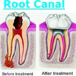 Root Canal Fairfax Virginia Dental Fair Oaks Mall