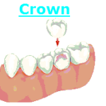 Crown Fairfax VA Dentist Virginia Dental Care