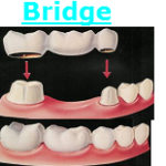 Dental Bridge Fairfax Virginia Fair Oaks Mall Dentist
