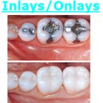 Fairfax VA Cosmetic Tooth Whitening