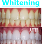 Teeth Whitening Fairfax VA Dentist Fair Oaks Mall Virginia Dentistry